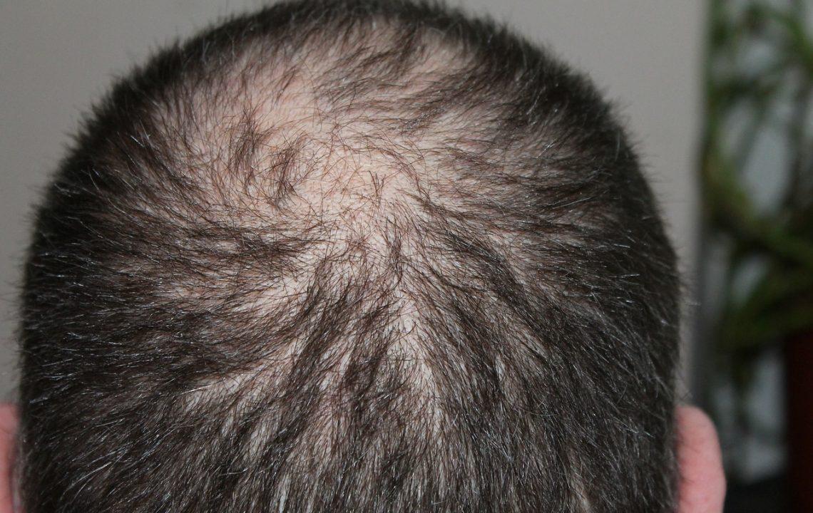 Zabrání kurkumin padání vlasů?