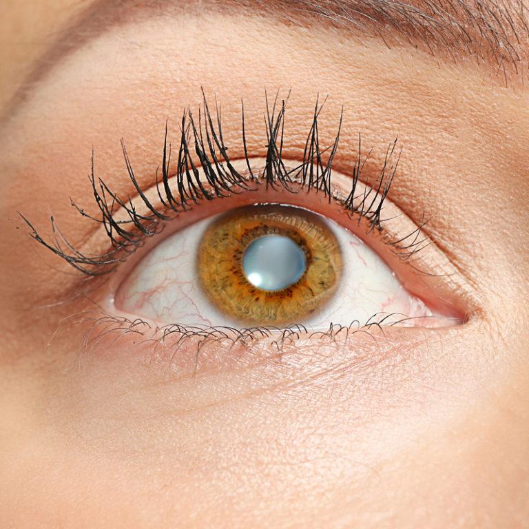 Epigenetika a zdraví očí I. – Prevence šedého zákalu