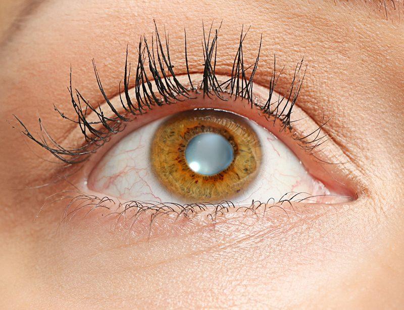 Epigenetika a zdraví očí 1-19062018