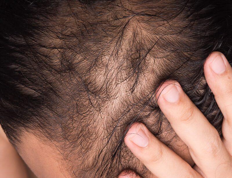 epivyziva-lexikon-nemoci-padani-vlasu