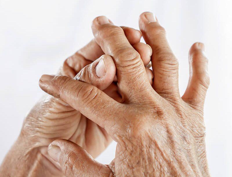 epivyziva-lexikon-nemoci-revmatoidni-artritida
